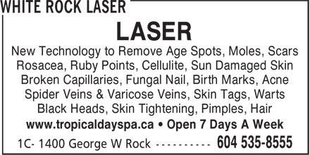 Ads White Rock Laser
